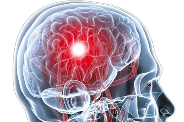 ✅ دبیر علمی کنگره بین المللی نورولوژی و الکتروفیزیولوژی بالینی ایران: سونوگرافی در پیشگیری ثانویه سکته مغزی نقش مهمی دارد