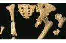 انسان در مراحل تکامل دچار دردهای لگن، شانه و زانو شده است
